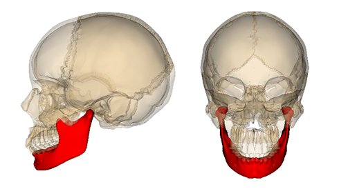 顎関節症の歯科治療の限界